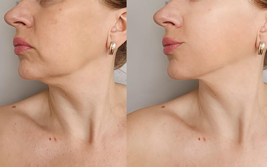 supprimer reduire double menton (1)