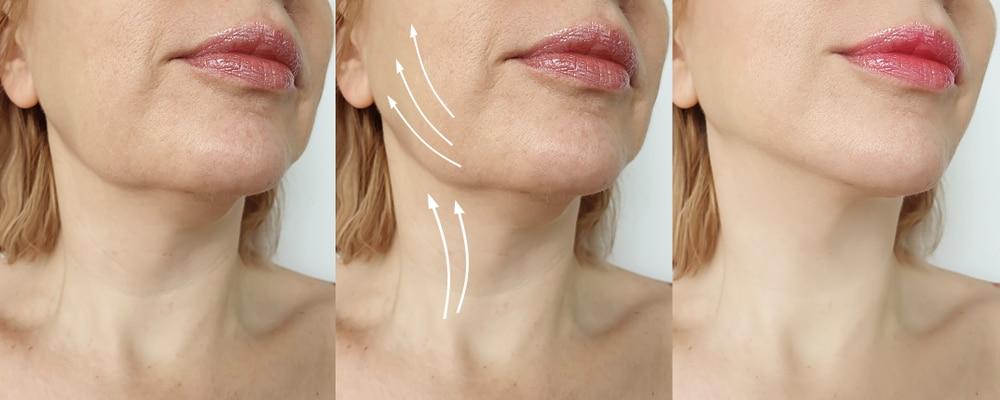 comment raffermir ovale du visage