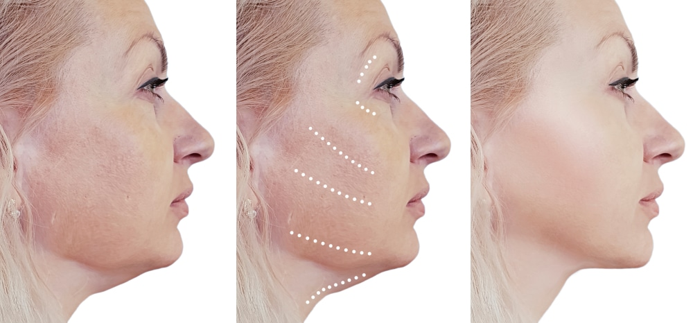 raffermir ovale du visage