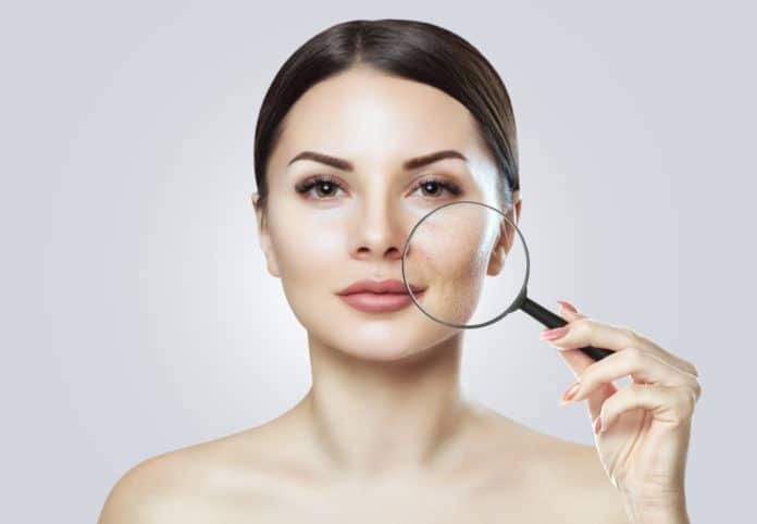 Peau granuleuse causes, traitements, méthode pour lisser sa peau