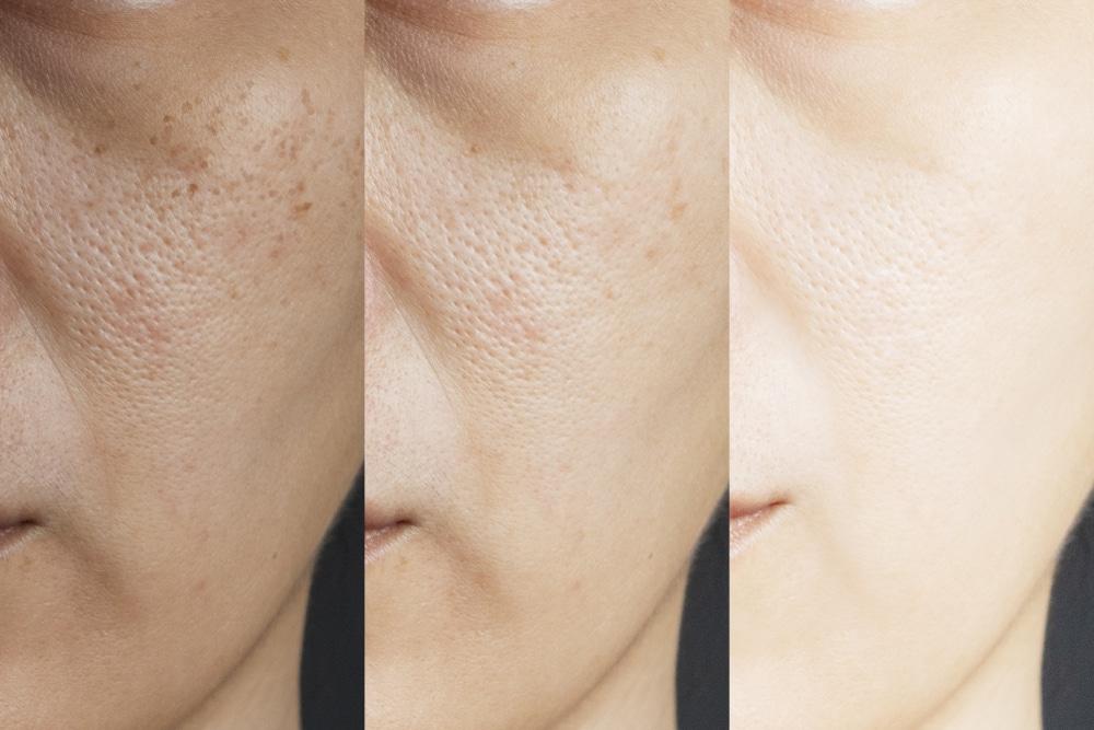 peau granuleuse