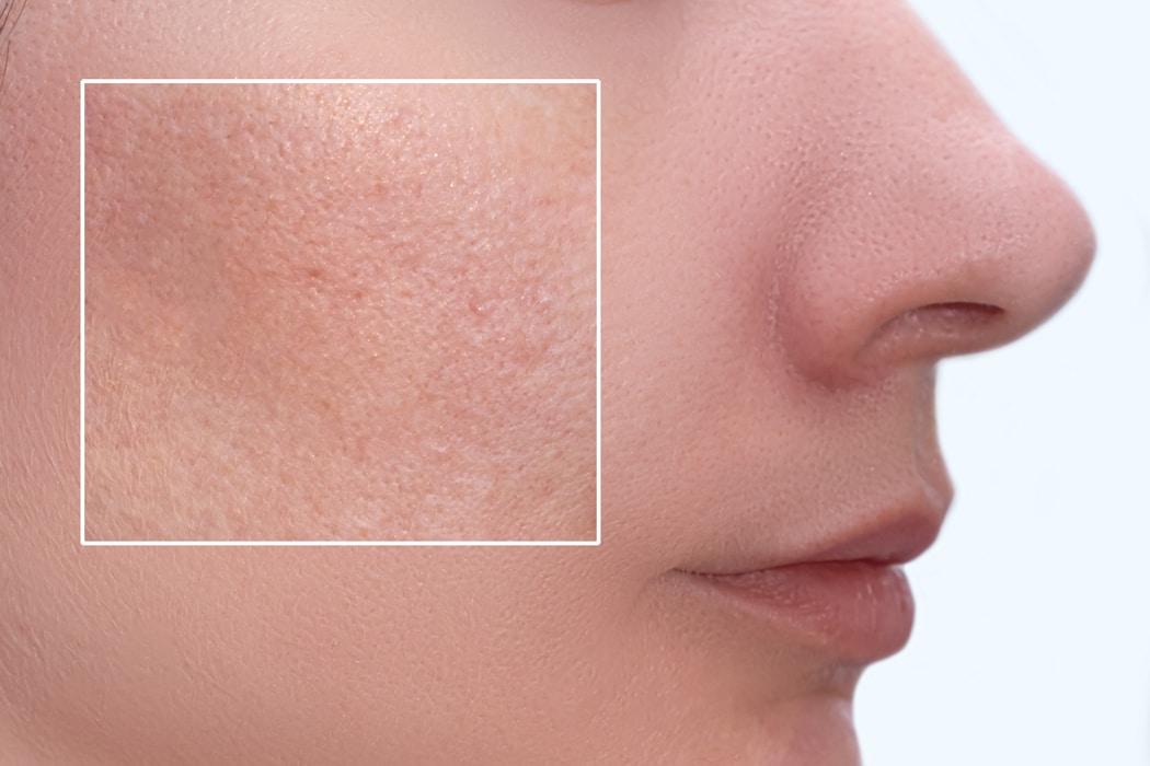 pores dilatés comment les resserrer