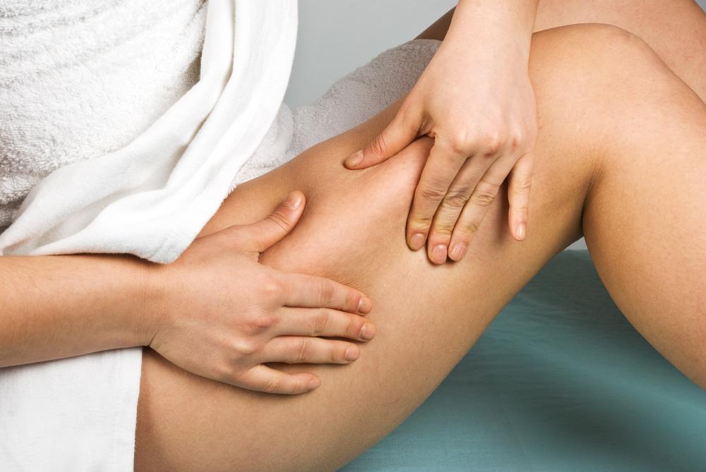 Cellulite localisée sur les fesses et les cuisses