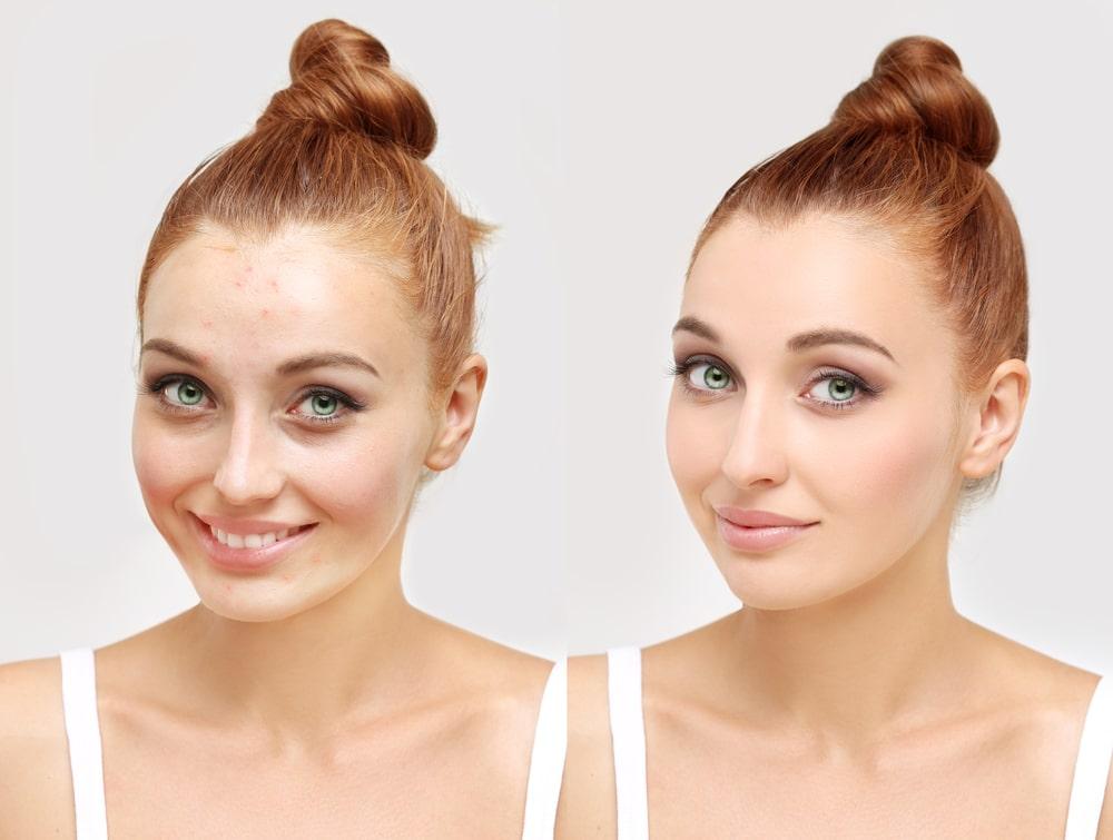 fond de teint anti acné